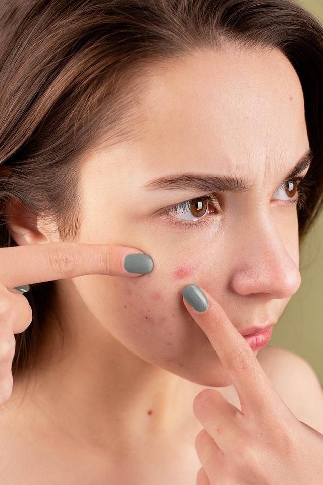 Acne Treatment Like Proactive
